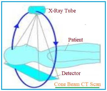 Cone Beam Computed Tomography for CBCT scanning