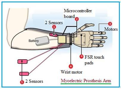Myoelectric Prosthesis Arm