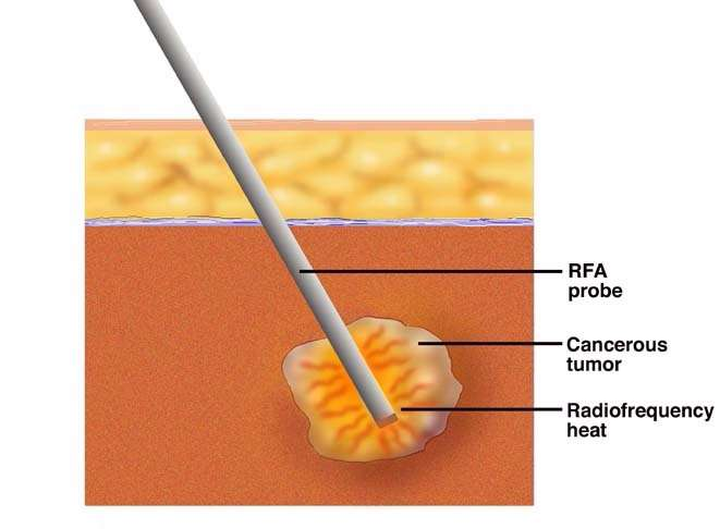 RF ablation as chemotherapy treatment