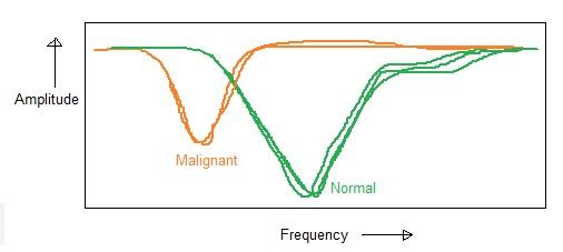 RF spectroscopy