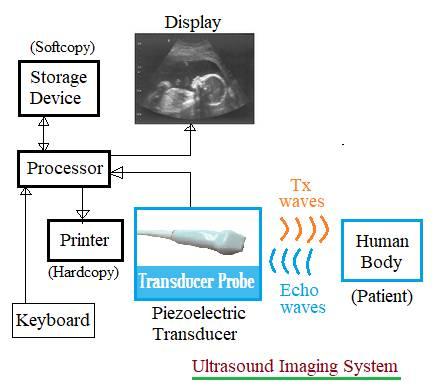 Ultrasound imaging system block diagram